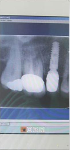 implantater